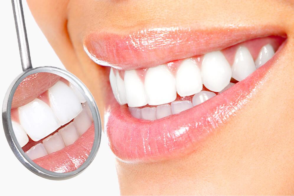 Schonend für die Zähne